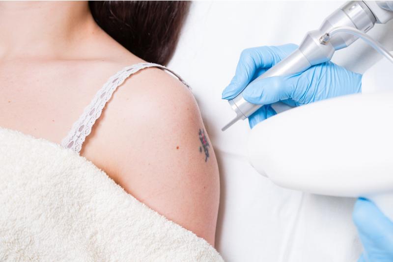 удаление татуировок лазером, как называется аппарта для удаления тату лазером